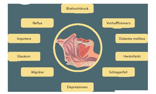 Folgen von Atemwegserkrankungen / Schlafapnoe: Schnrachen, Migräne, Schlafstörungen sowie Müdigkeit und Depression, nächtlichem Schwitzen und einem Reflux - auch bei Kindern als HNO in Friedrichshafen